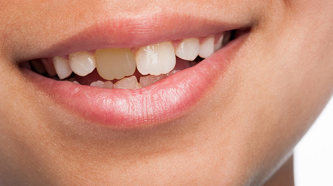 Discoloration Of Teeth In Children: 4 Serious Causes For Concern
