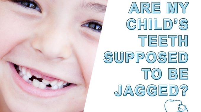 Are Jagged Teeth Normal in Children? (Hint: They're Called