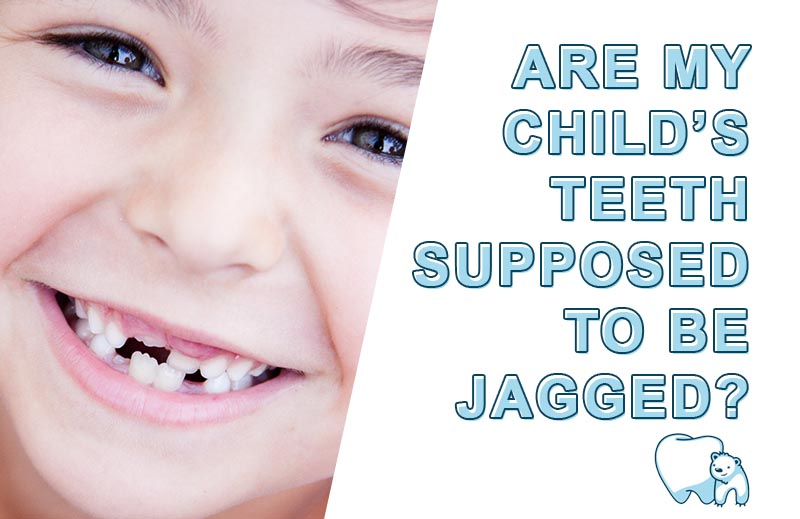 are jagged teeth normal in children hint they re called mamelons